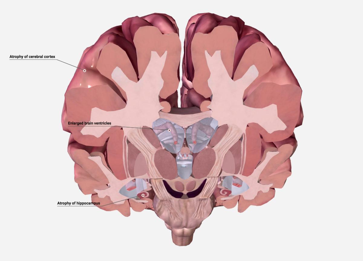 脳をチューンアップしてアルツハイマー病を止めよう[1/2]